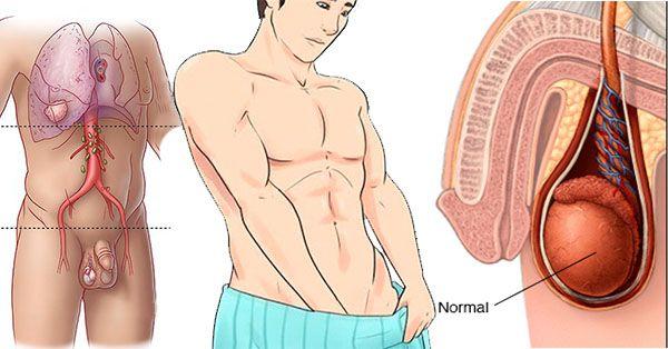 cancer testicular sintomas cancerul este vindecabil acum