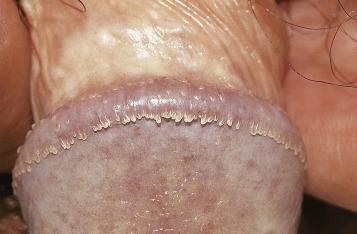 condyloma acuminata human papillomavirus