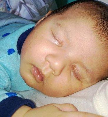 oxiurus em bebe