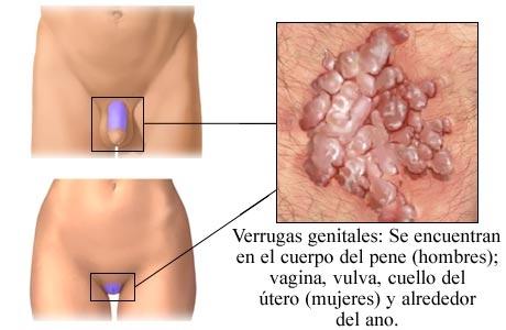 virus del papiloma humano causas sintomas tratamiento y prevencion cancer de pancreas tipos histologicos