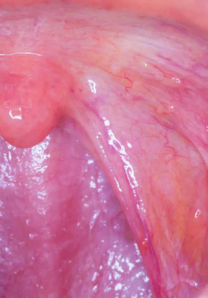 metastatic cancer diagnosis is hpv throat cancer rare