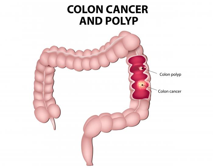cause of colorectal cancer intraductal papilloma of breast pathology outlines