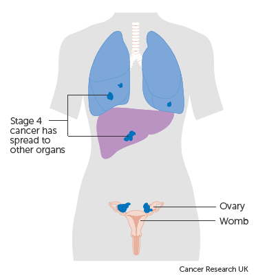 metastatic cancer last stage symptoms