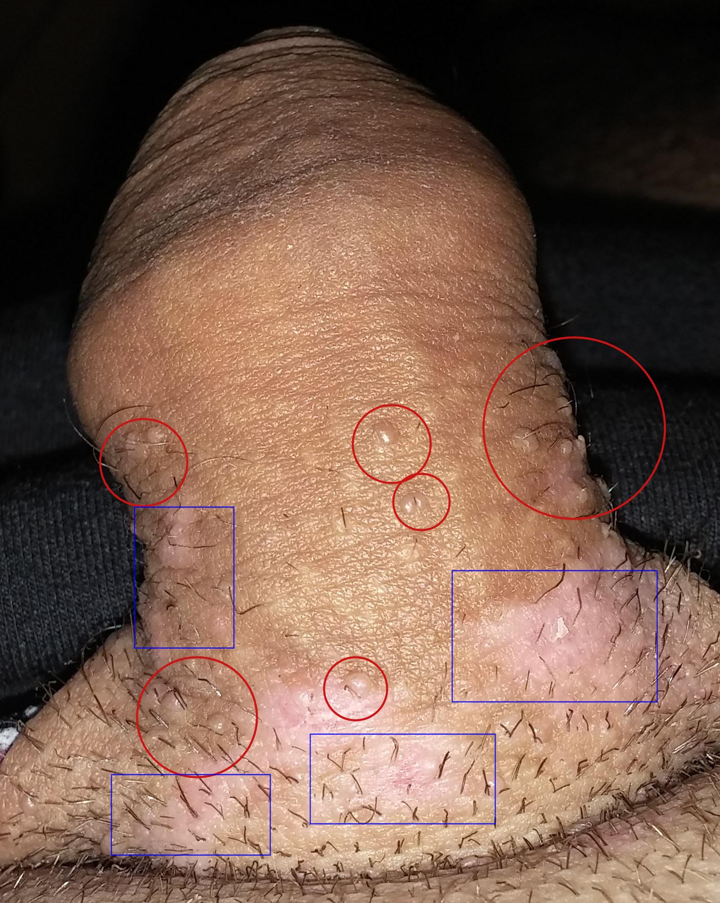 agravarea erecției