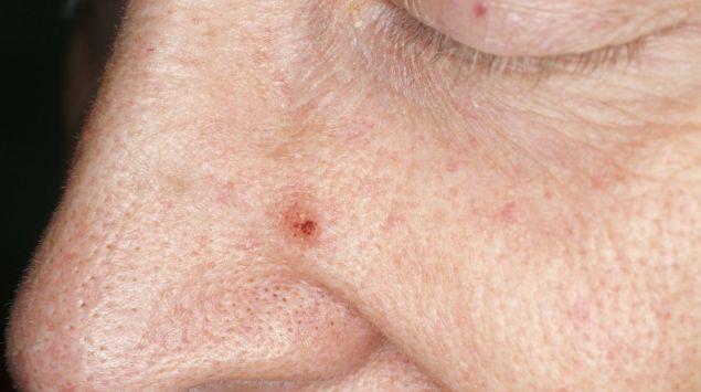 papillom entfernen nase non hpv tongue cancer
