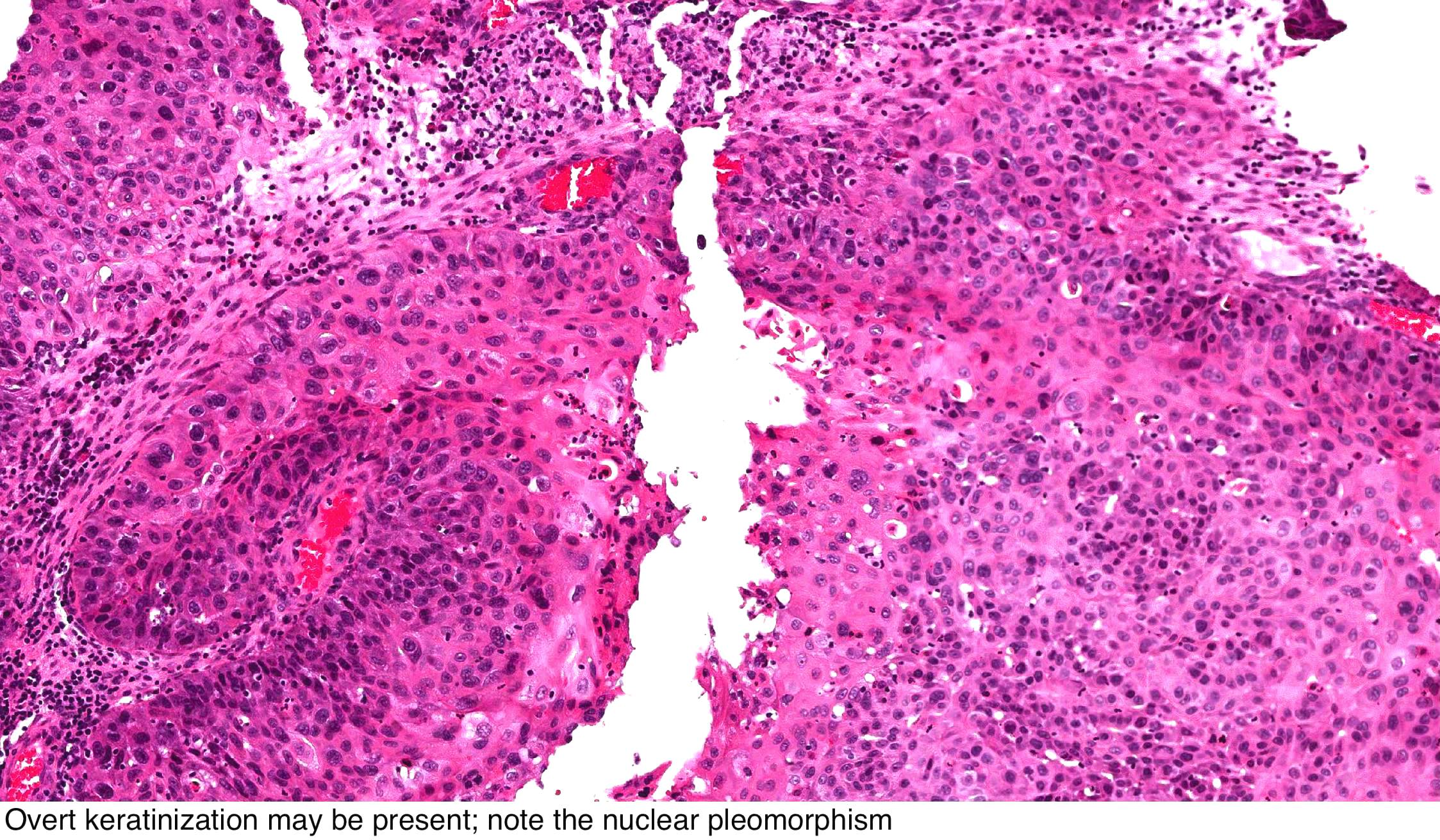 inverted papilloma nasal cavity pathology hpv virus jucken