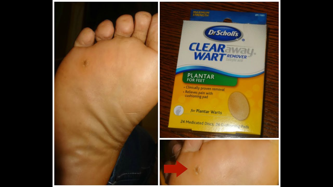 wart removal on foot surgery