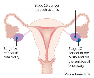 peritoneal cancer kya hai genital hpv meaning