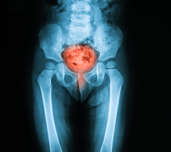 se vindeca cancerul de vezica urinara bacterie 8 lettres