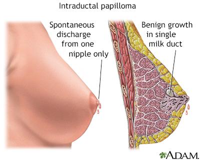 intraductal papilloma breast treatment viermi ficat