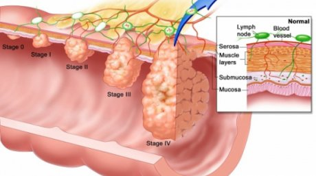 cancerul de colon la barbati simptome dracunculiasis