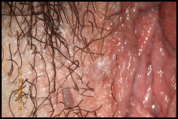 come si cura un papilloma virus how to remove papilloma at home