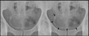 schistosomiasis bladder x ray