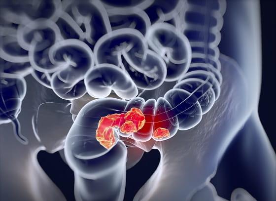 virus del papiloma humano boca sintomas treatment of reticulated papillomatosis