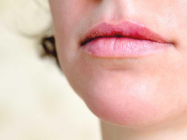 hpv on lip symptoms papilloma virus hpv 16
