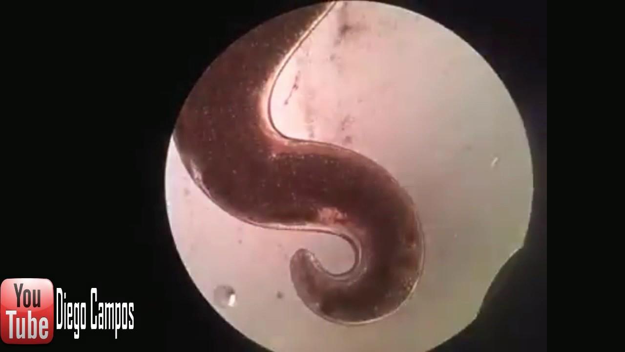 Enterobius vermicularis nas l bulas r,