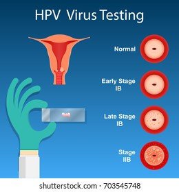 virus papiloma humano utero