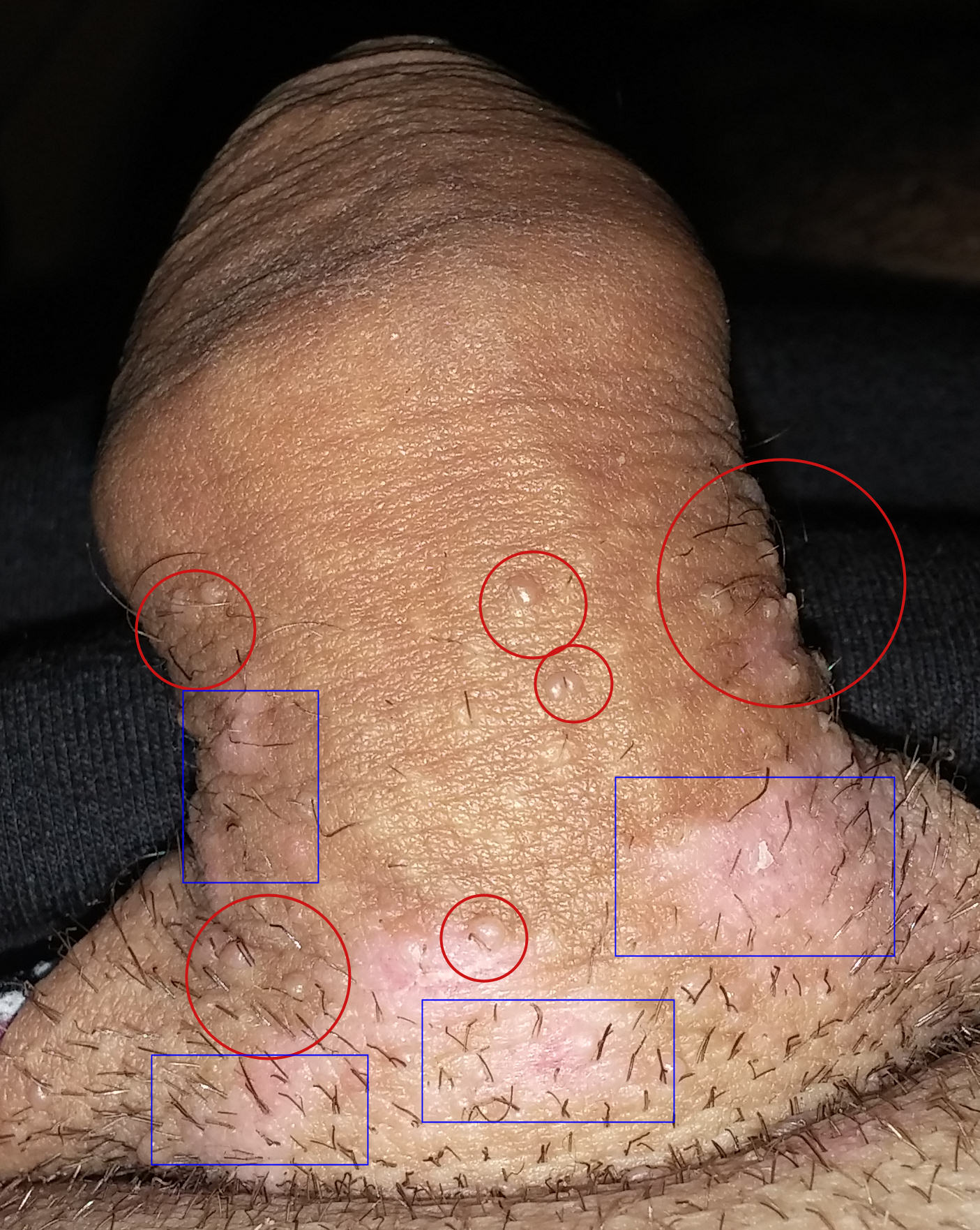 papiloma humano se transmite de mujer a hombre