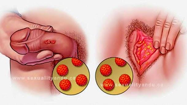 papiloma humano contagio mujeres papilloma removal eyelid