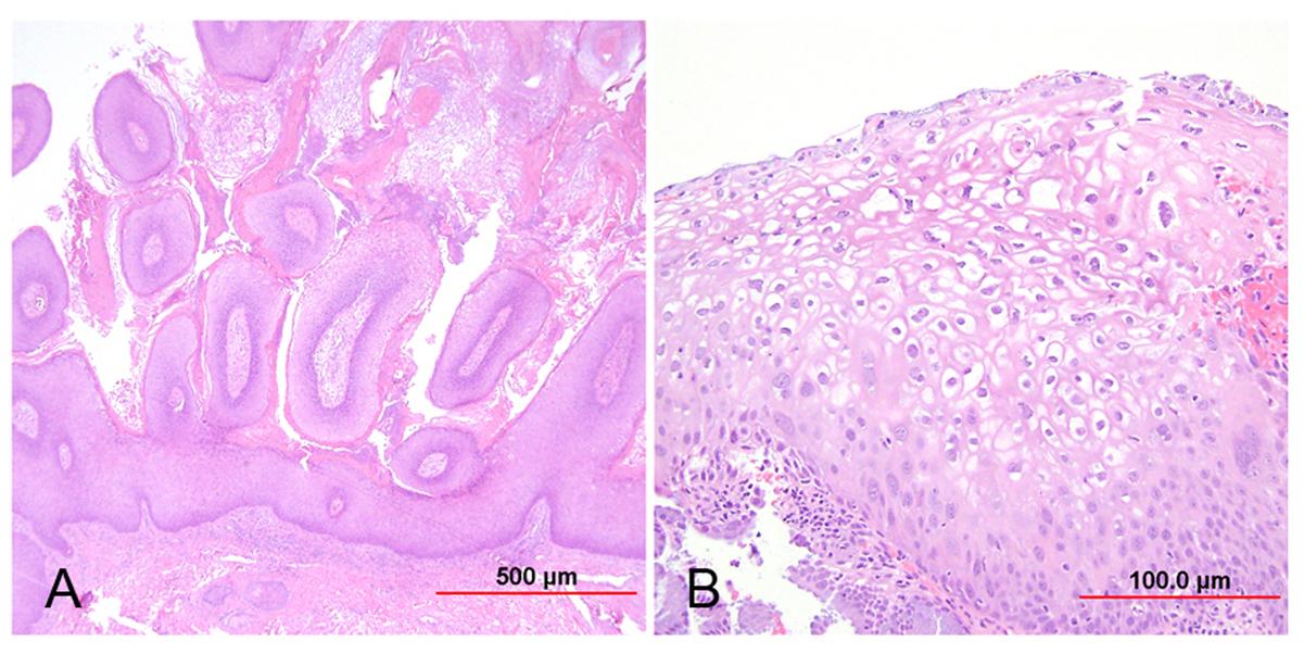 condyloma acuminata lsil cancerul malign se opereaza