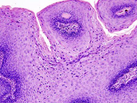 virus del papiloma humano causas sintomas tratamiento y prevencion papiloma verruga genital