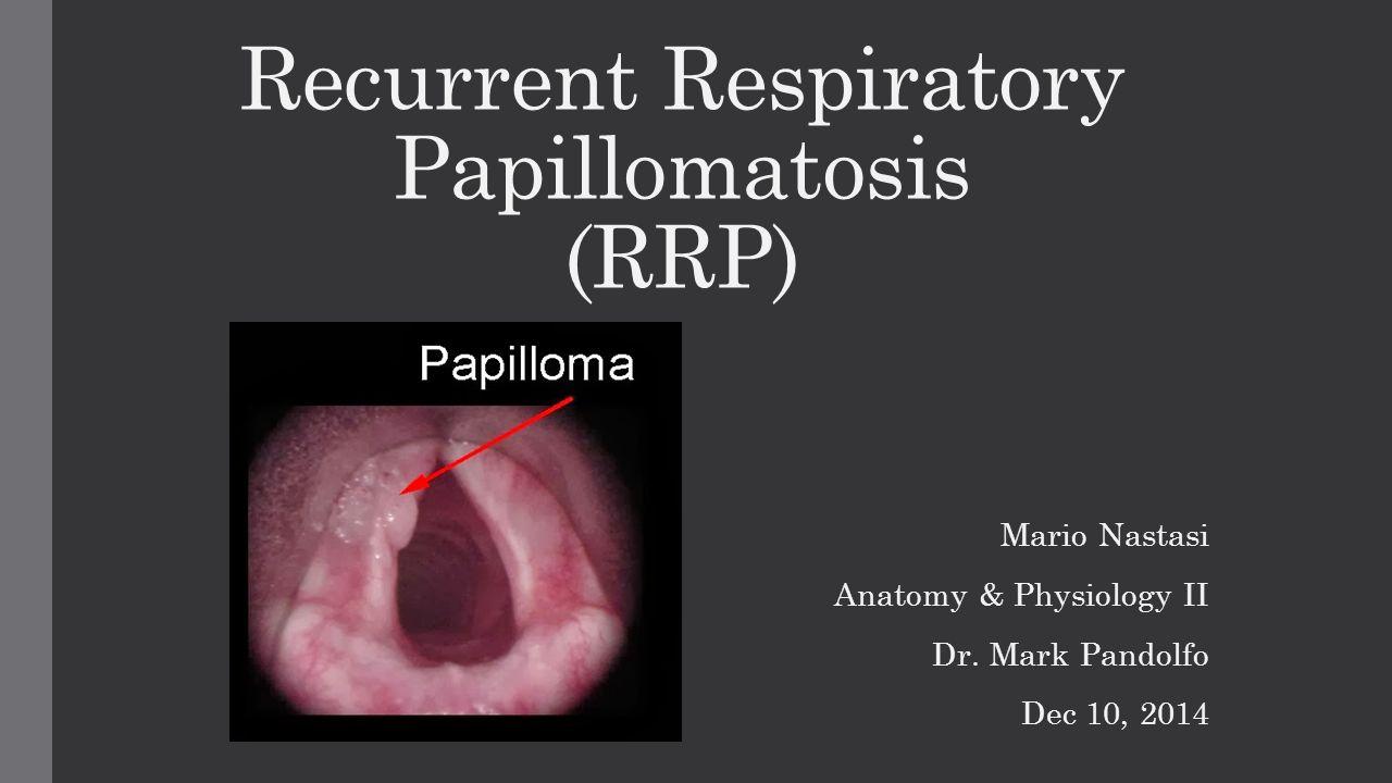 recurrent laryngeal papillomatosis