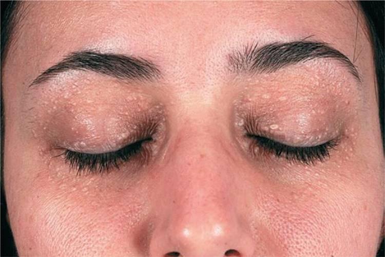 virus papiloma boca y garganta helminti synevo