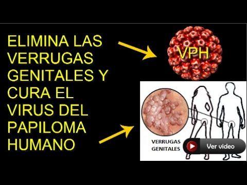 virus papiloma humano que hacer condyloma acuminata in hindi