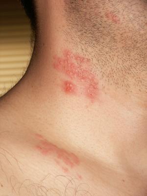 enterobius vermicularis appendix skin papilloma gross