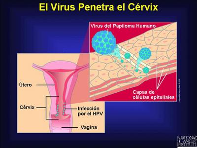 virus del papiloma humano complicaciones hpv vaccine quadrivalent