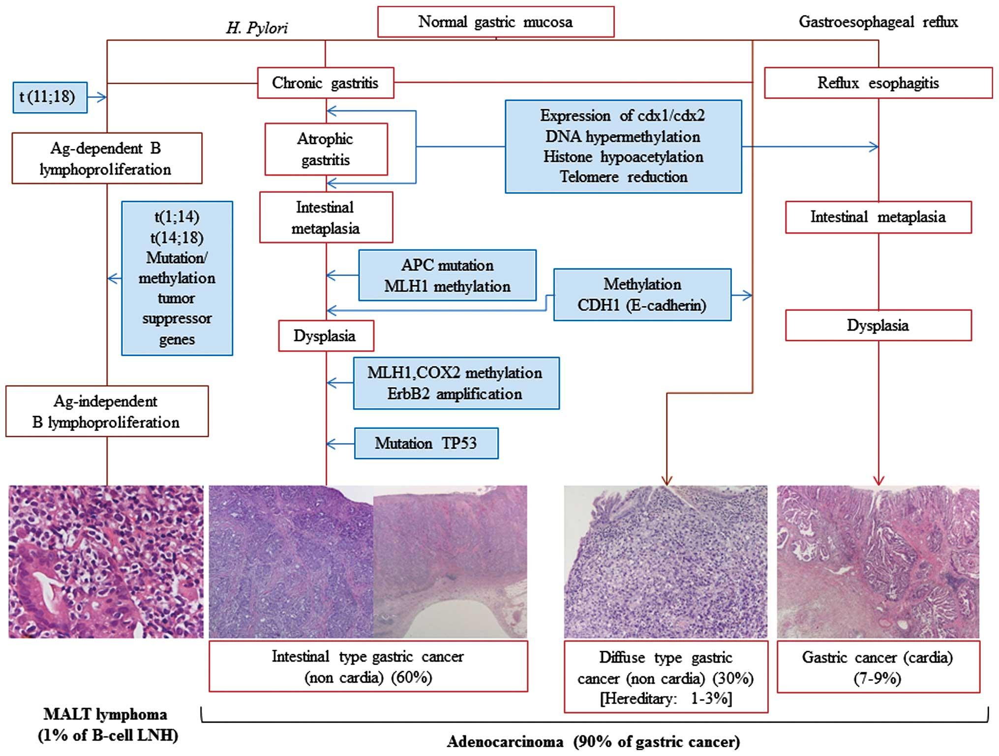 detoxifierea organismului de medicamente intraductal papilloma pregnancy