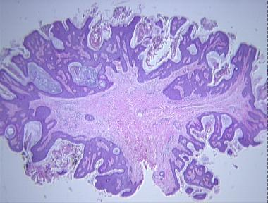fibroepithelial papilloma polyp papiloma em caes sintomas