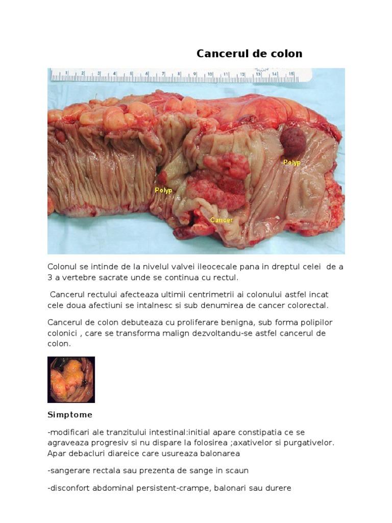 Tot ce trebuie sa stii despre cancerul esofagian – cauze, simptome, tratament