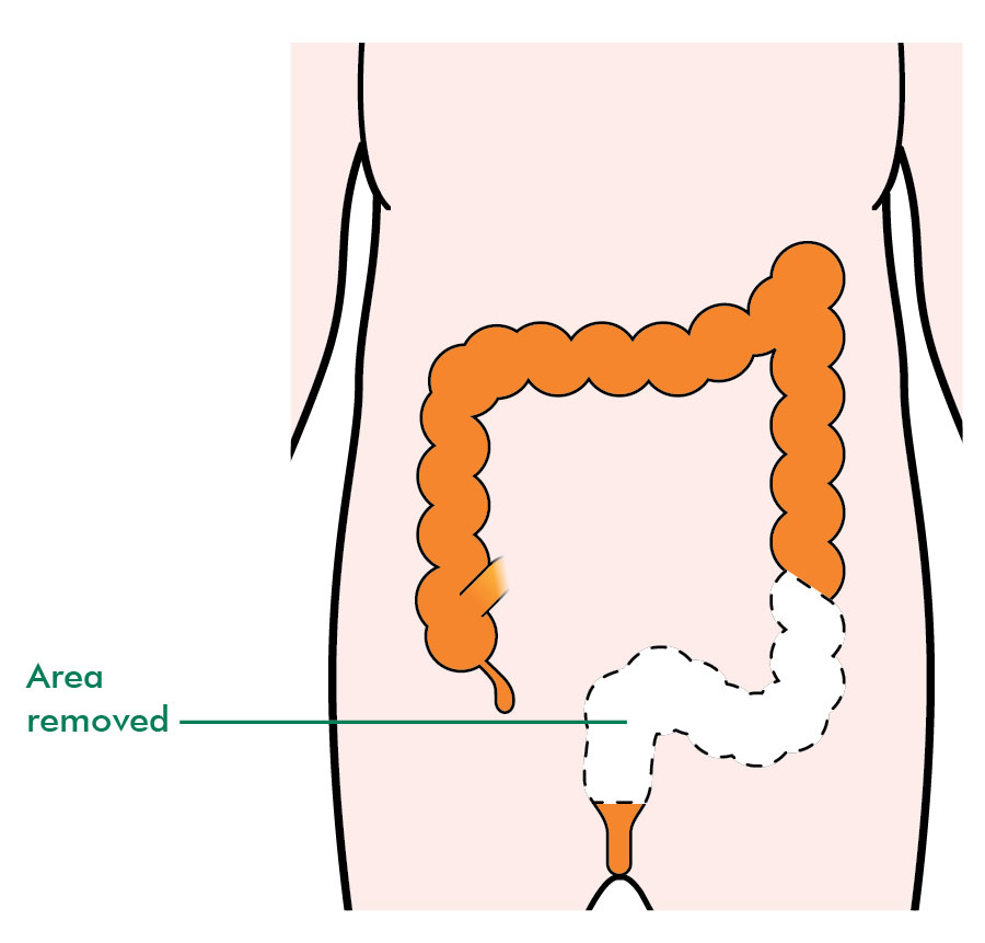 papiloma humano boca sintomas de ce apare cancerul la copii
