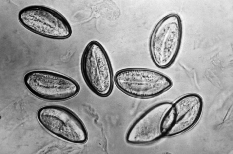 3 etape de detectare a viermilor la copii și 8 simptome principale ale enterobiozei