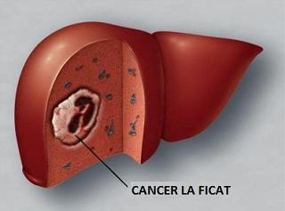 cancer ficat tratament cancers caused by hpv 16