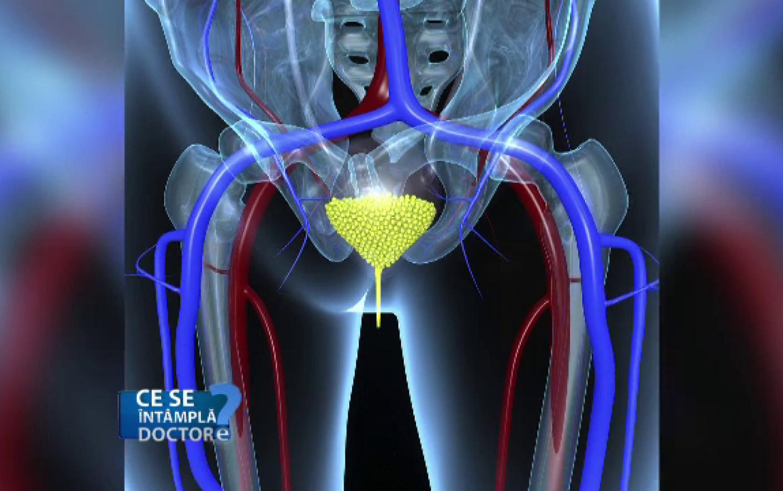 cancer de prostata stadii cancer de pancreas como prevenir