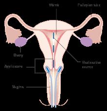 cancer de col uterin benign cancer de pancreas y peritoneo