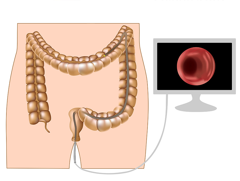 cancer hepatic stadiul 4