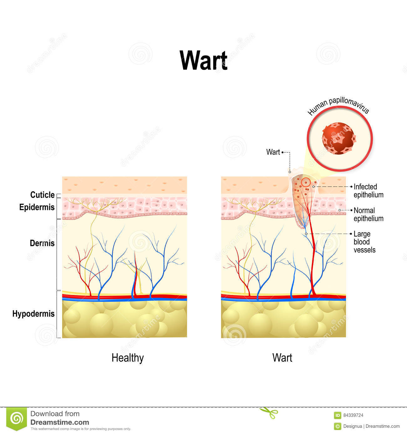 wart virus cancer