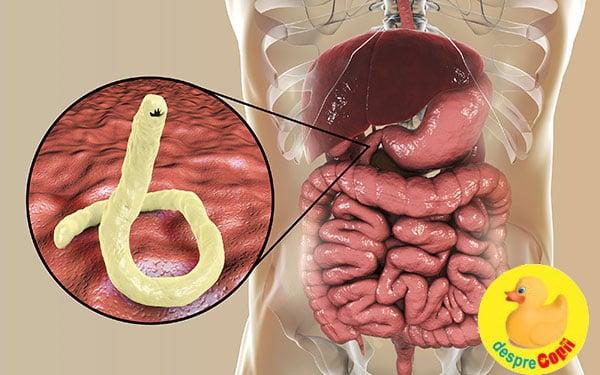 parazi?ii intestinali simptome wart on foot in pregnancy