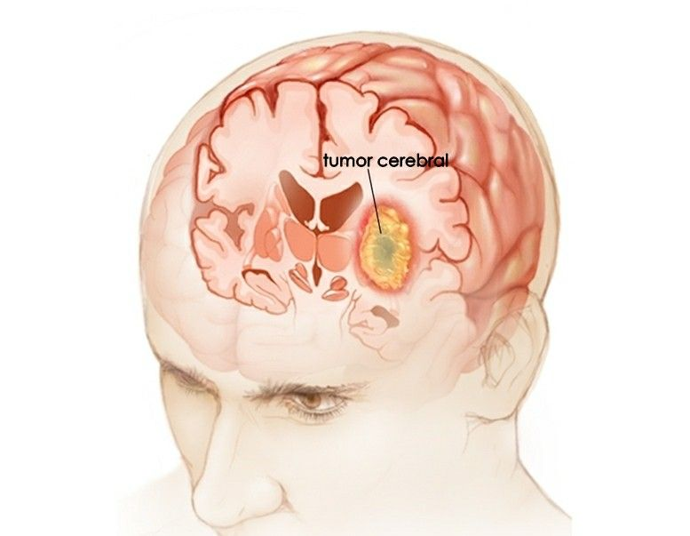 omega 3 dysbiosis