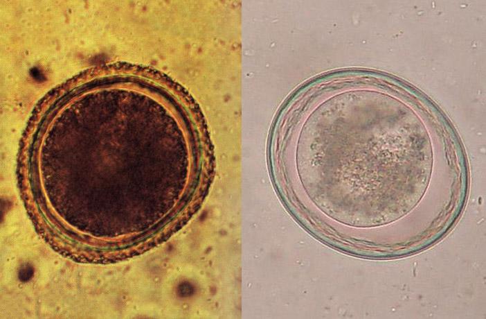paraziti toxocara flatulenta excesiva tratament