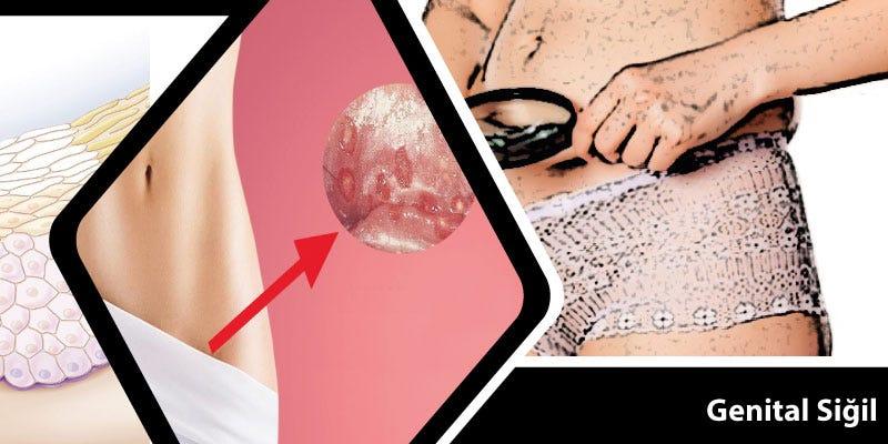 genital hpv nedir cancerul de col uterin cauze simptome
