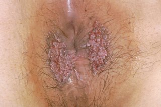 genital warts type of hpv