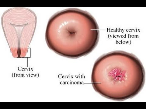 papilloma virus positivo senza lesioni