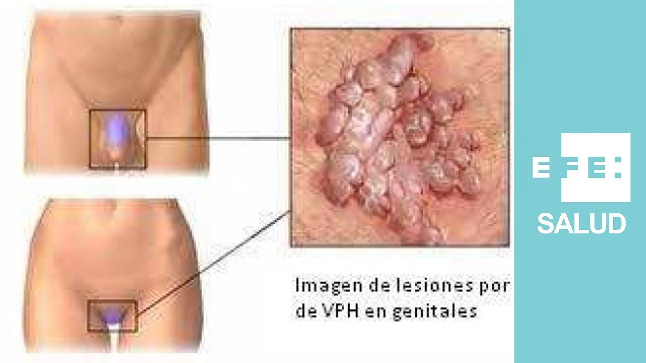 papiloma utero contagio