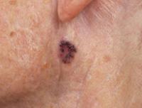 hpv tedavisi hap warts on hands beginning stages