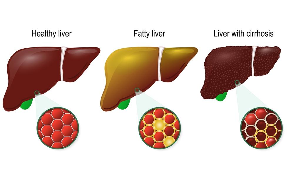 cancer hepatic stadiul 4 squamous papilloma larynx icd 10