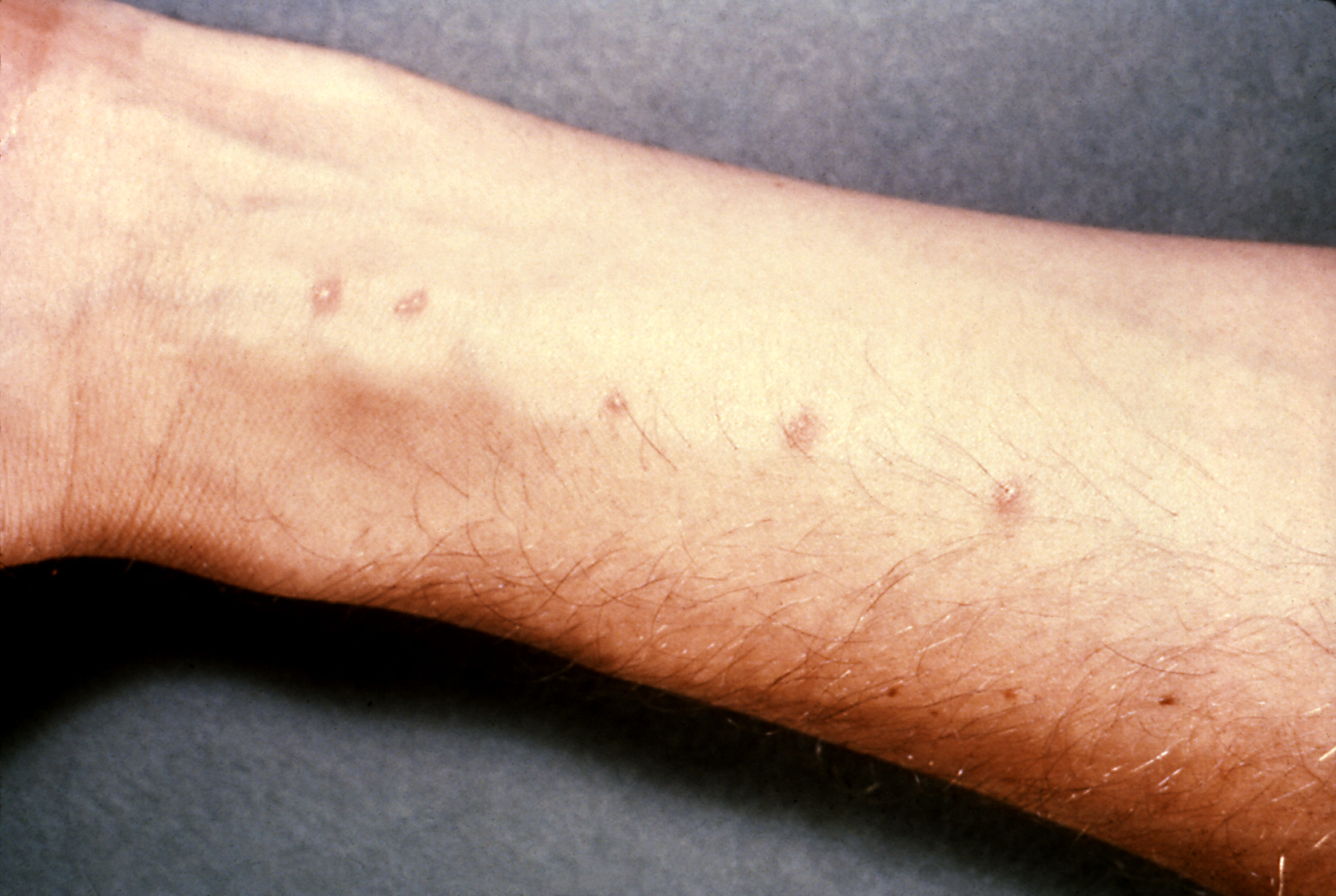 Schistosomiază - Wikipedia
